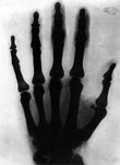 An X ray of Tesla's hand